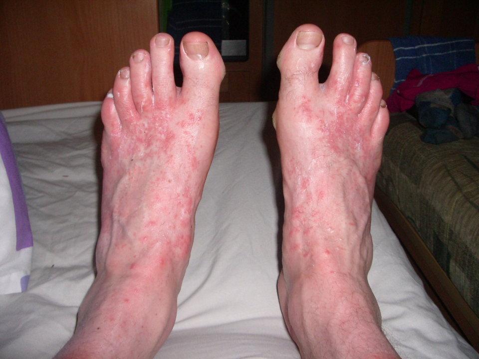A bad case of Corbett Foot, 98 kb